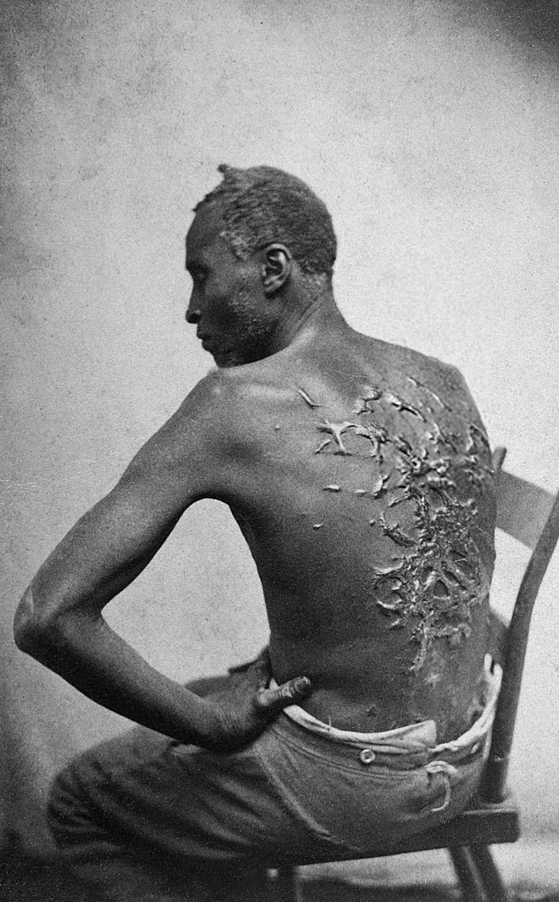 800px-Scourged_back_by_McPherson_&_Oliver,_1863,_retouched